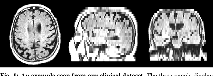 Figure 1 for Medical Image Imputation from Image Collections