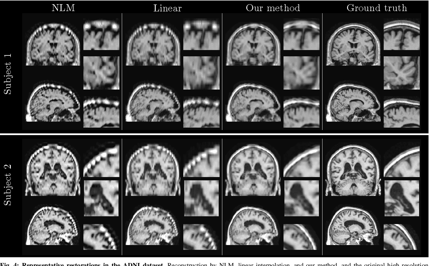 Figure 4 for Medical Image Imputation from Image Collections