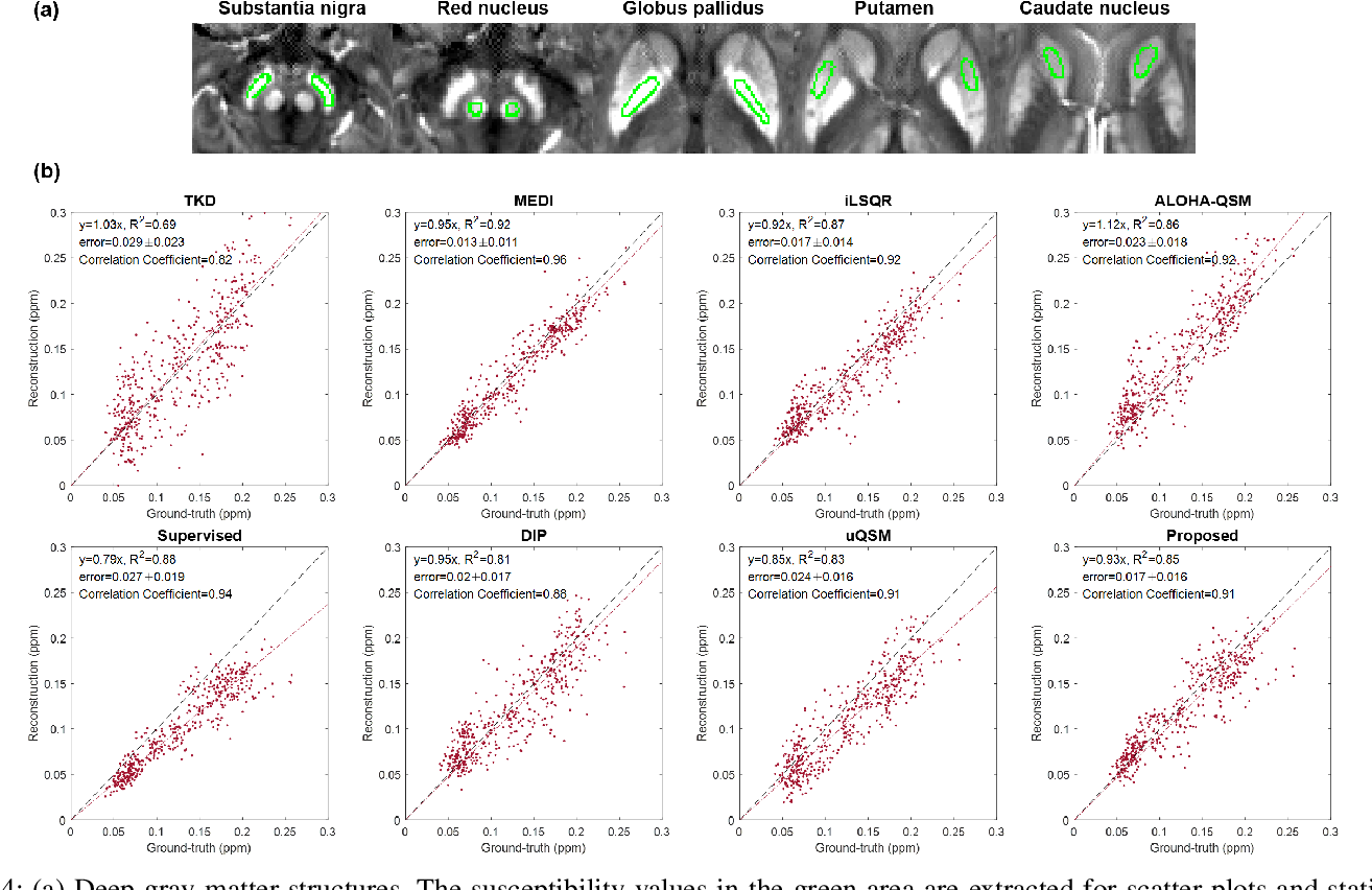 Figure 4 for CycleQSM: Unsupervised QSM Deep Learning using Physics-Informed CycleGAN