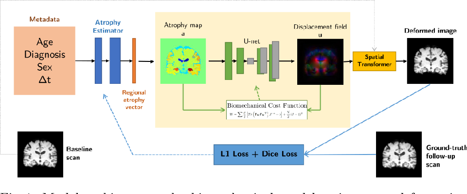 Figure 1 for Distinguishing Healthy Ageing from Dementia: a Biomechanical Simulation of Brain Atrophy using Deep Networks