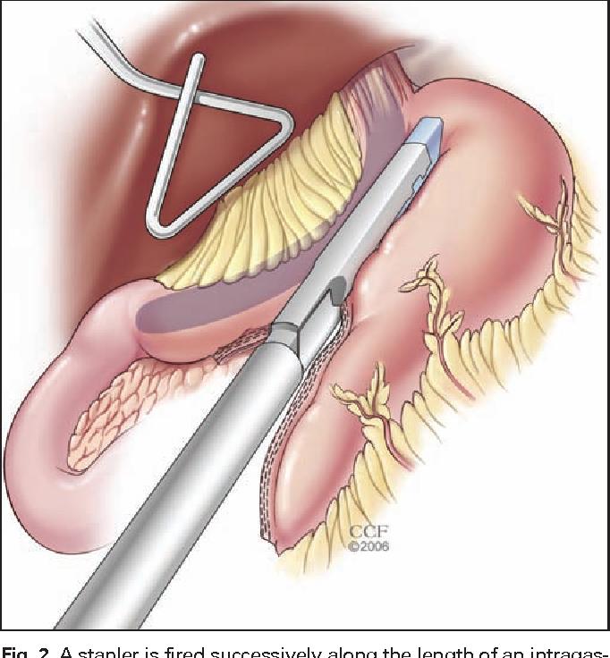 Laparoscopic sleeve gastrectomy: an innovative new tool in the ...