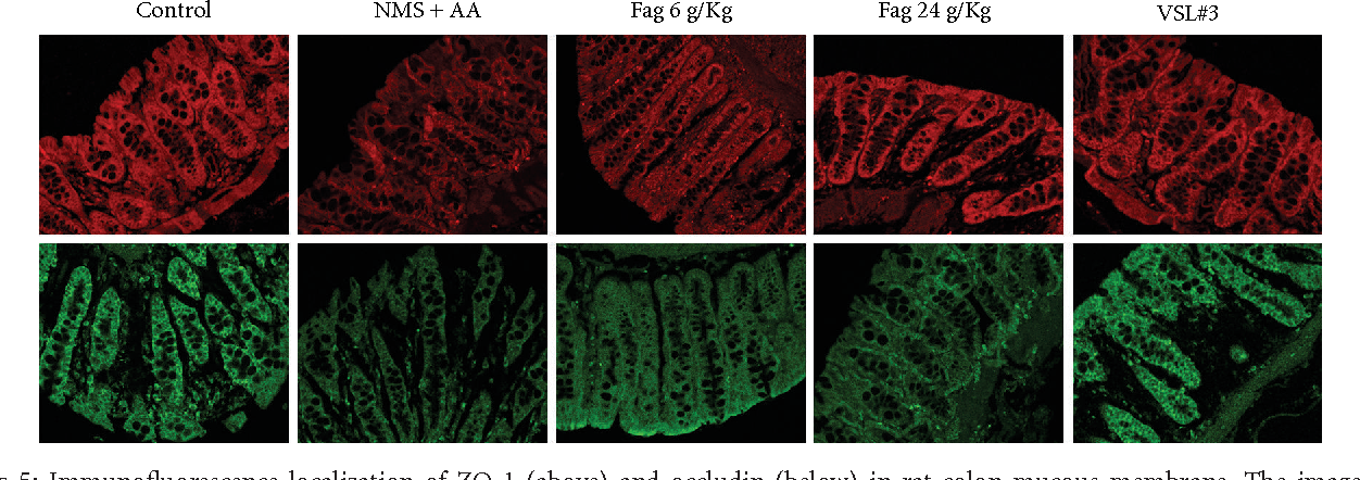 In Vivo and In Vitro Antinociceptive Effect of Fagopyrum