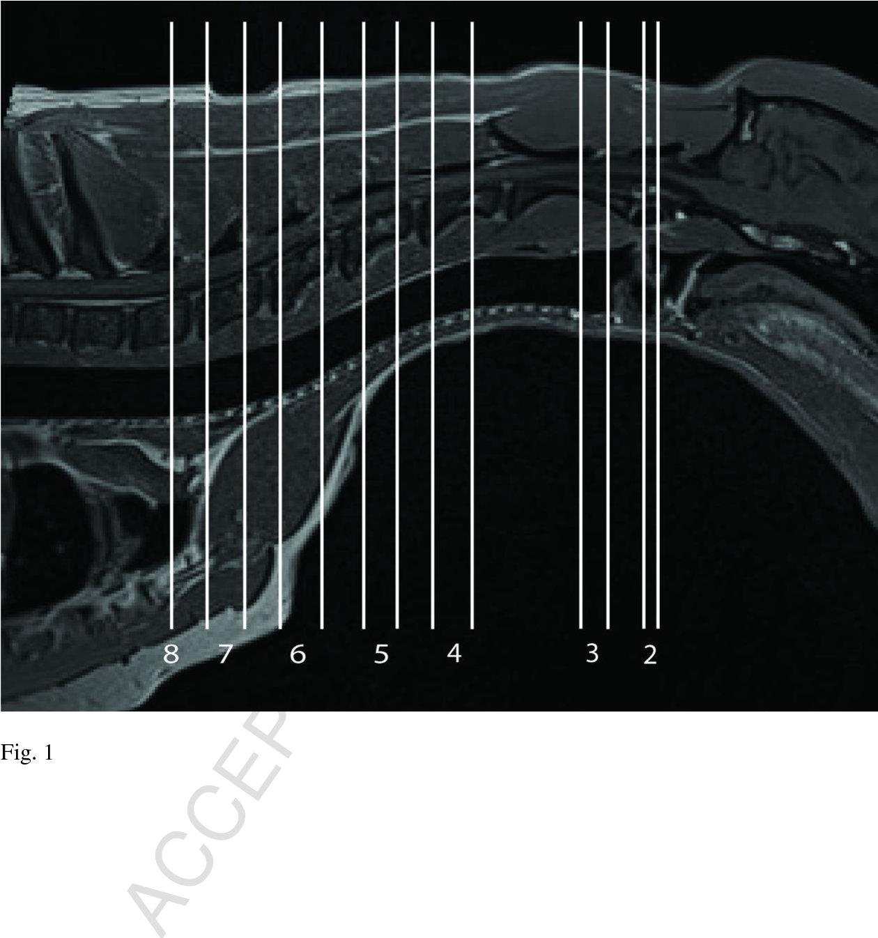 MRI cross sectional atlas of normal canine cervical musculoskeletal ...