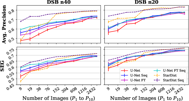 Figure 3 for Leveraging Self-supervised Denoising for Image Segmentation