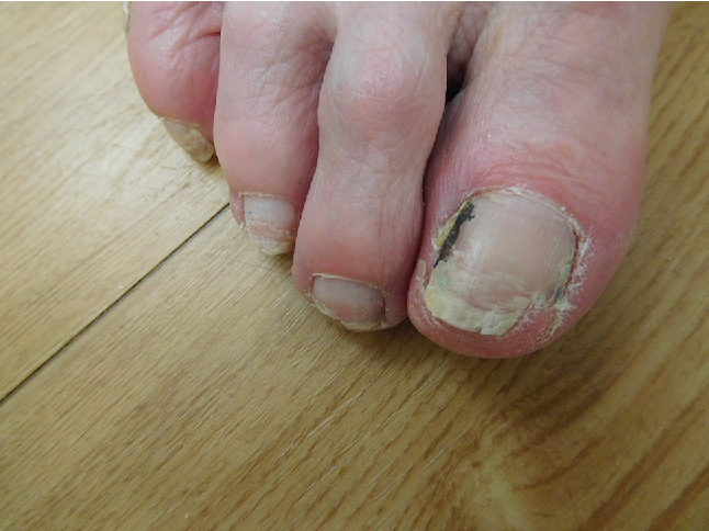 Ibrutinib-Associated Nail Plate Abnormalities: Case Reports and ...