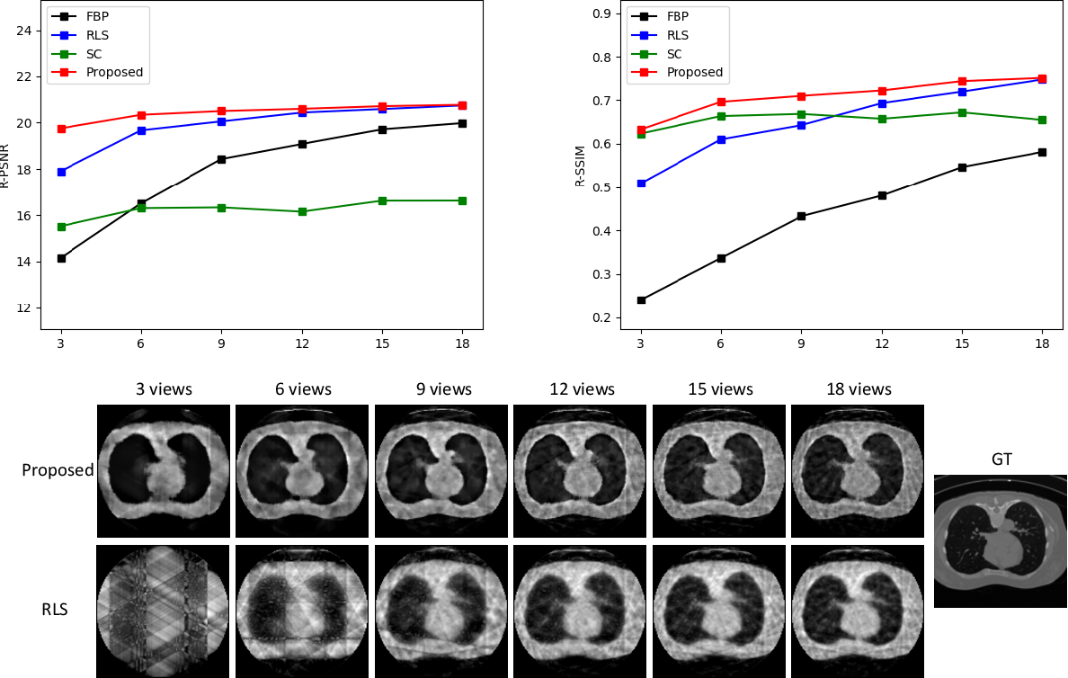Figure 3 for Extreme Few-view CT Reconstruction using Deep Inference