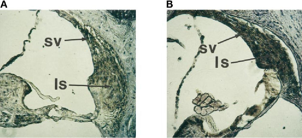 Figure 4. MMP-2 expression in the cochleae of Mpv17-negative (B) and wild-type (A) mice. The primary antibody was the same as in Figure 2. For detection a peroxidase-coupled secondary antibody was used. Magnification 2003. ls, ligamentum spirale; sv, stria vascularis