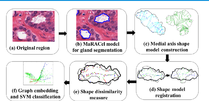 Figure 2 for A Comprehensive Review for MRF and CRF Approaches in Pathology Image Analysis