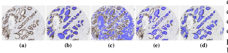 Figure 4 for A Comprehensive Review for MRF and CRF Approaches in Pathology Image Analysis