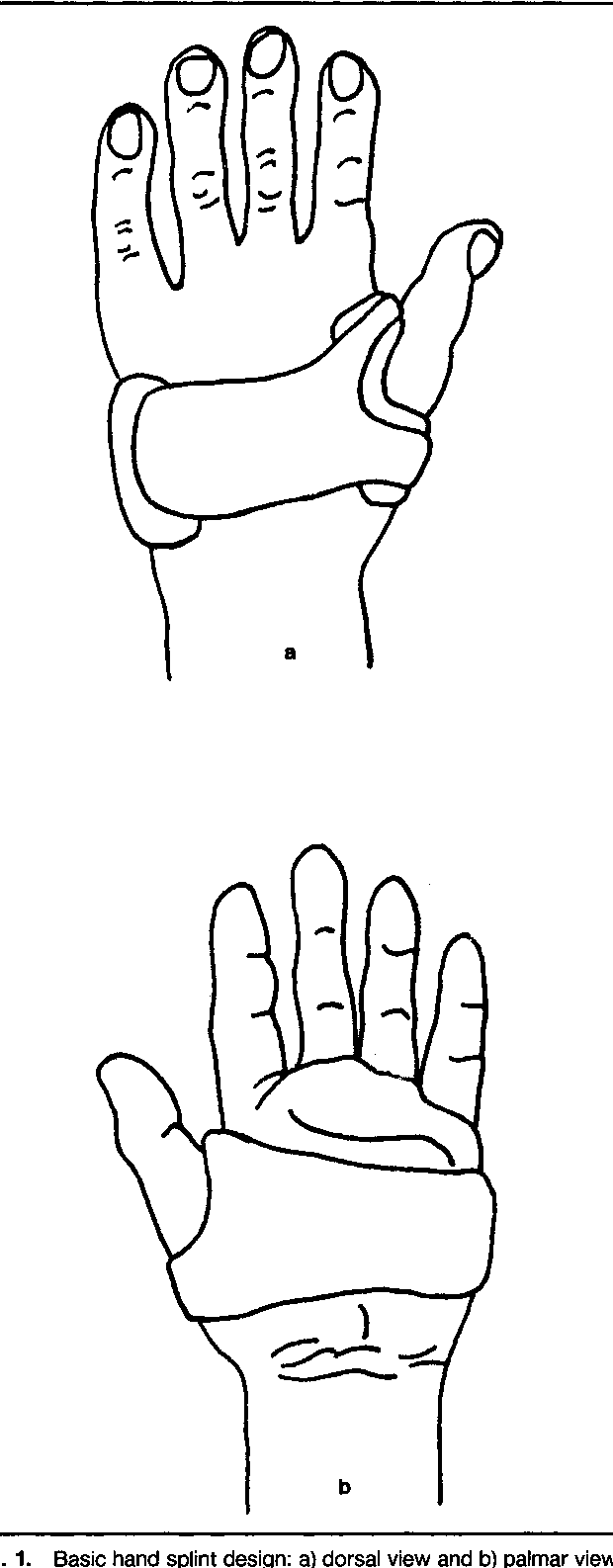 Effect Of Hand Splints On Stereotypic Behavior Three Girls