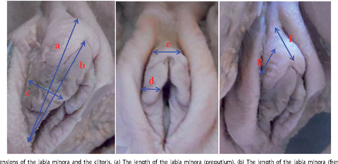 Appearance Of External Genital Organs And Types Of Hymen In Turkish