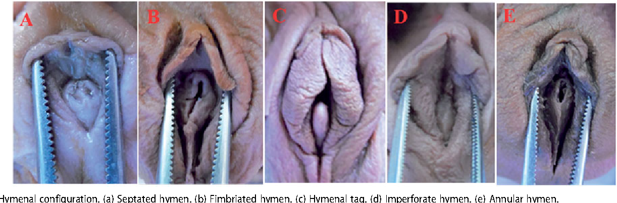 Appearance of external genital organs and types of hymen in Turkish ...