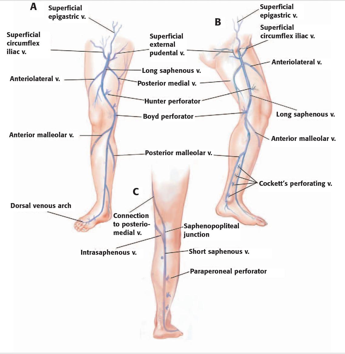 Figure 2 From Aesthetic Treatment Of Leg Veins Semantic Scholar