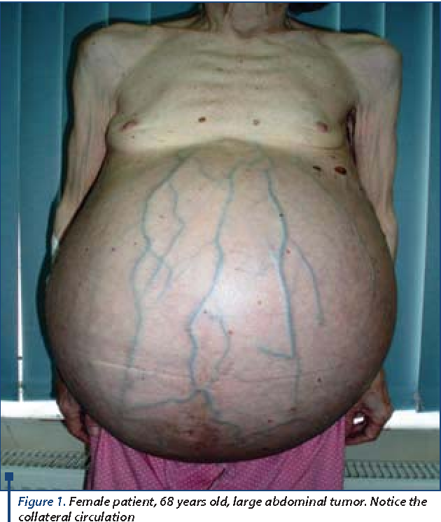 giant ovarian cyst a diagnostic and therapeutic challenge