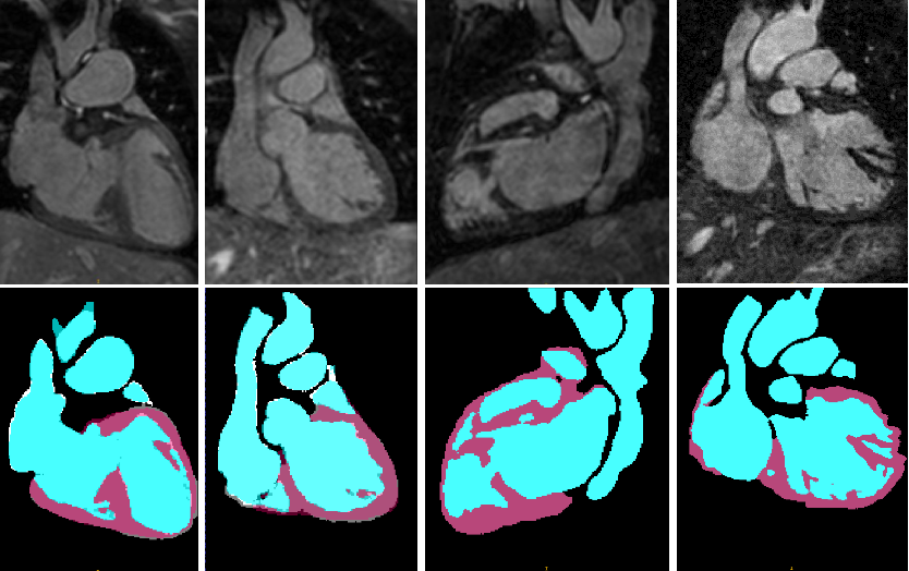 Figure 3 for Automatic 3D Cardiovascular MR Segmentation with Densely-Connected Volumetric ConvNets