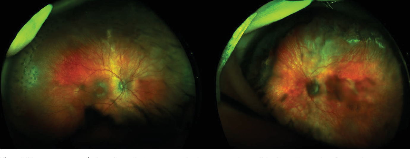 Binocular Indirect Ophthalmoscopy Complements Non-contact