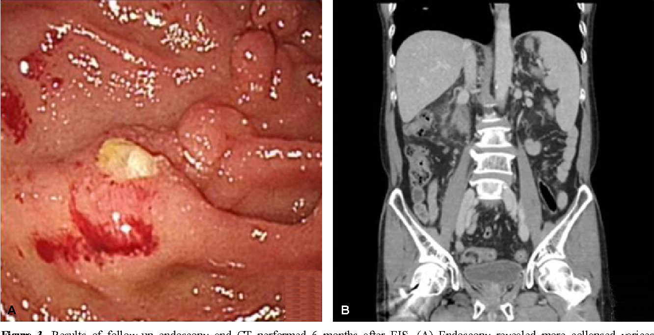 Figure 3. Results of follow-up endoscopy and CT performed 6 months after EIS. (A) Endoscopy revealed more collapsed varices with small yellow plaques on the postbulbar portion of the duodenum. (B) Abdominal CT disclosed collapsed and greatly decreased portosystemic venous collaterals in the retroperitoneum of the paraduodenal space.