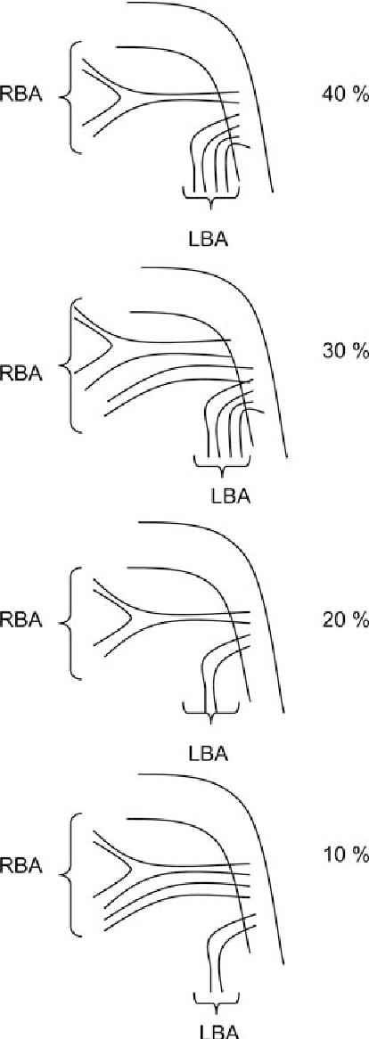 Figure 1 From Thromboendarterectomy And Circulatory Arrest