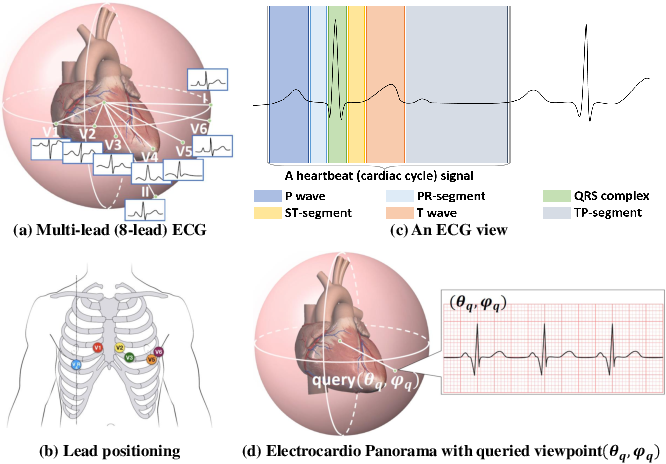 Figure 1 for Electrocardio Panorama: Synthesizing New ECG Views with Self-supervision