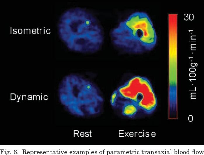 PDF] Skeletal muscle blood flow and flow heterogeneity