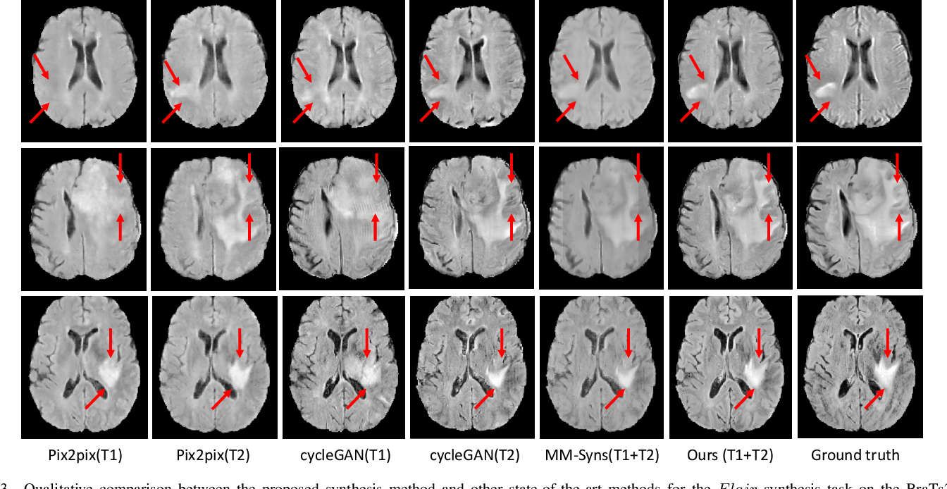 Figure 3 for Hi-Net: Hybrid-fusion Network for Multi-modal MR Image Synthesis