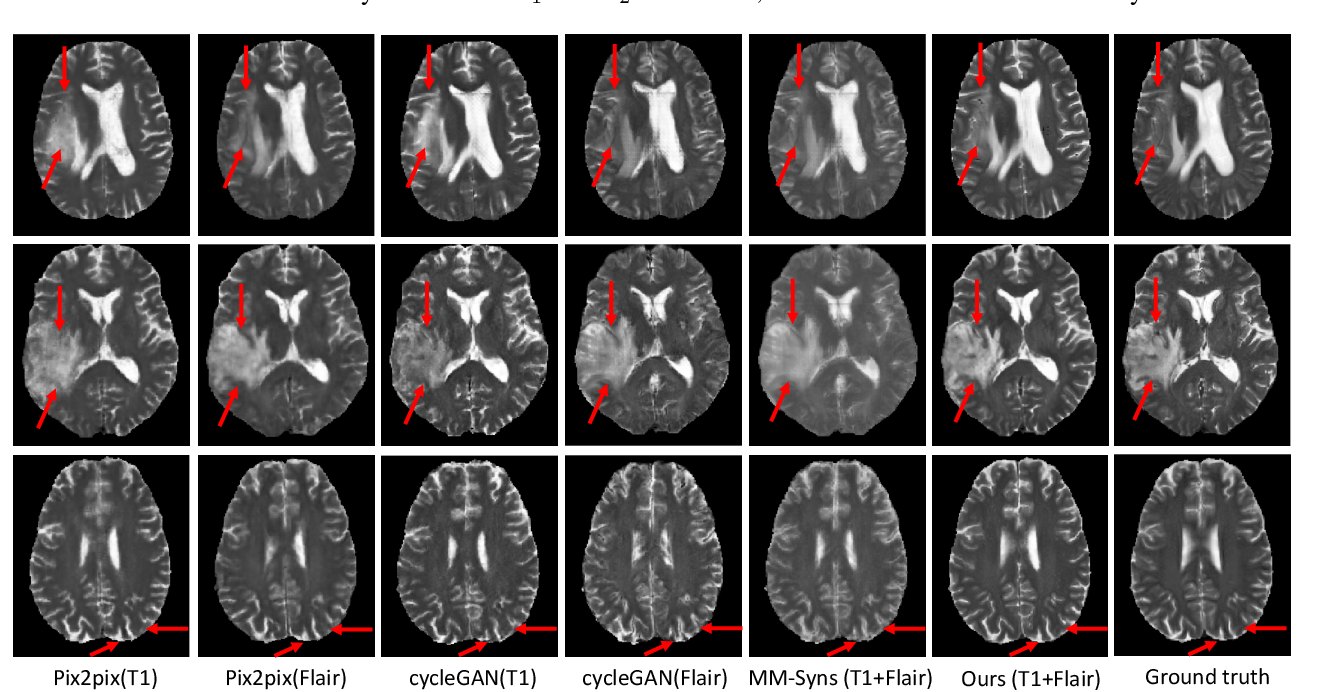 Figure 4 for Hi-Net: Hybrid-fusion Network for Multi-modal MR Image Synthesis