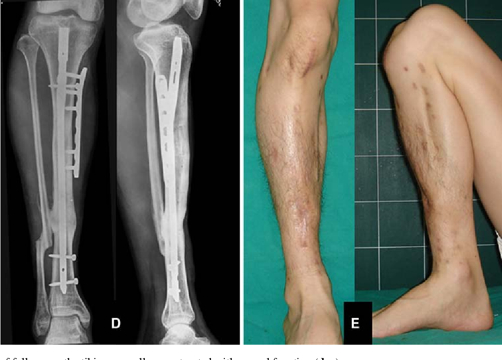 Bone Transport Over An Intramedullary Nail For Reconstruction Of