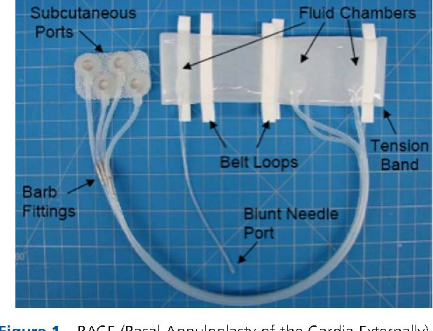 Figure 1 BACE (Basal Annuloplasty of the Cardia Externally) device with subcutaneous ports.