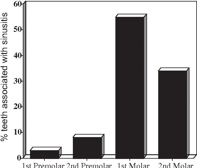 Figure 4. The incidence of 100 maxillary posterior teeth possibly involved with maxillary sinusitis. Periapical disease from the first and second maxillary molars is by far the largest contributor.