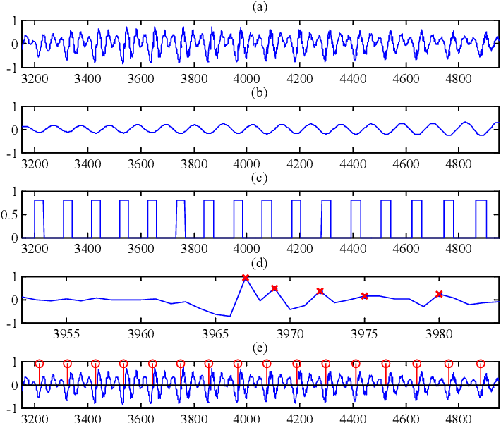 Figure 2 for A Waveform Representation Framework for High-quality Statistical Parametric Speech Synthesis