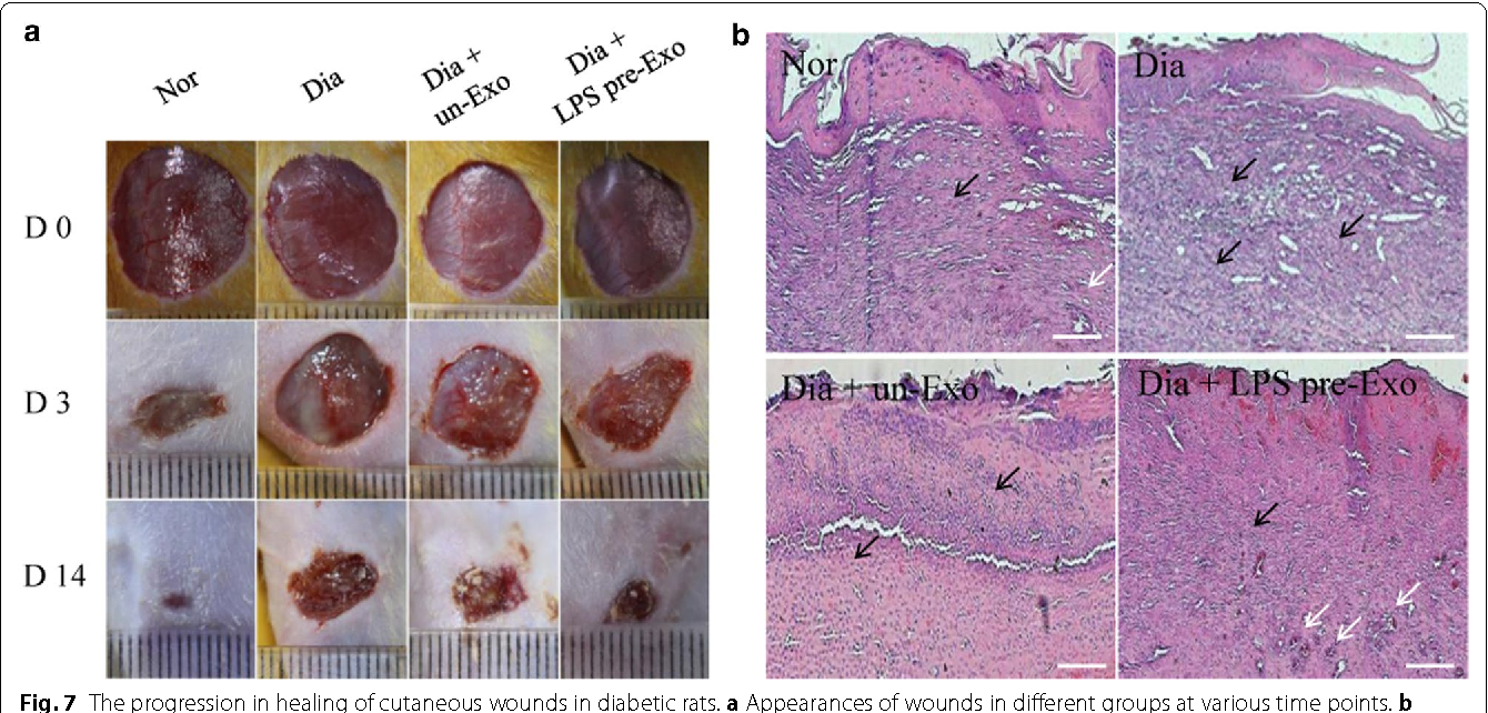 Fig. 7 The progression in healing of cutaneous wounds in diabetic rats. a Appearances of wounds in different groups at various time points. b Histological analyses of cutaneous injury in diabetic rats at 3 days. There are apparently decreased inflammatory cell infiltration (black arrows) and promoted the appearance of new small capillaries (white arrows) in the Dia + LPS pre-Exo group. Scale bar 200 mm