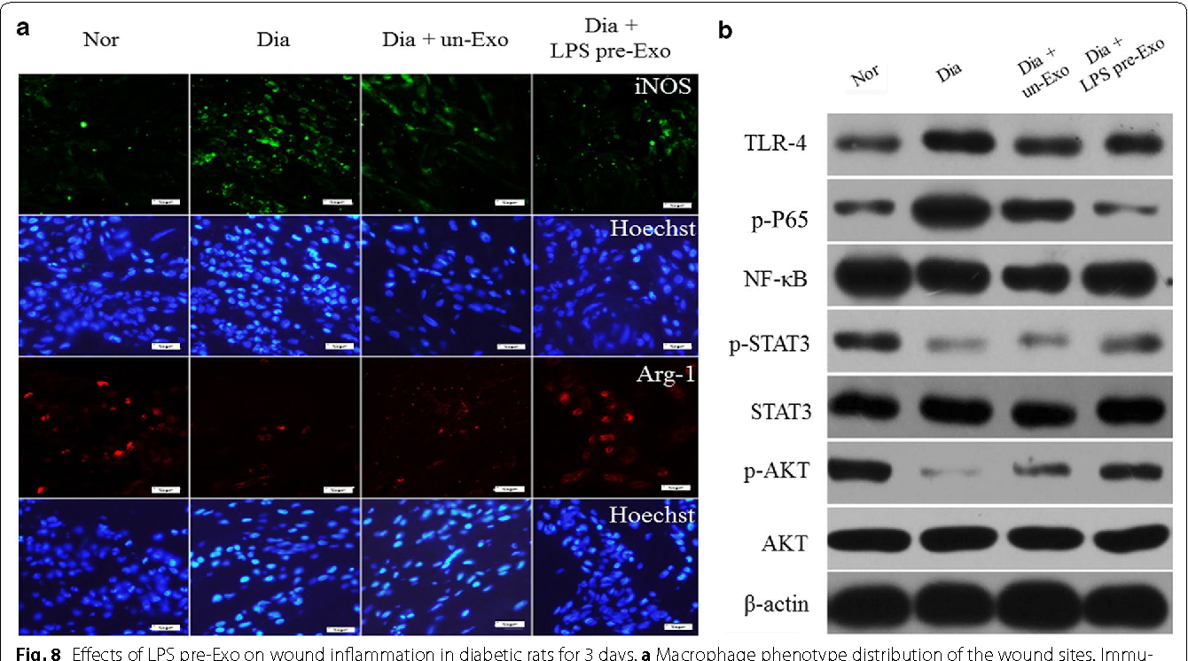 Fig. 8 Effects of LPS pre-Exo on wound inflammation in diabetic rats for 3 days. a Macrophage phenotype distribution of the wound sites. Immunofluorescence staining for iNOS (M1 green), Arg1 (M2 red), and nucleus (blue). Scale bar 50 µm. b Western blotting analysis for the TLR4/NF-κB/ STAT3/AKT signal pathway