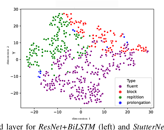 Figure 3 for StutterNet: Stuttering Detection Using Time Delay Neural Network