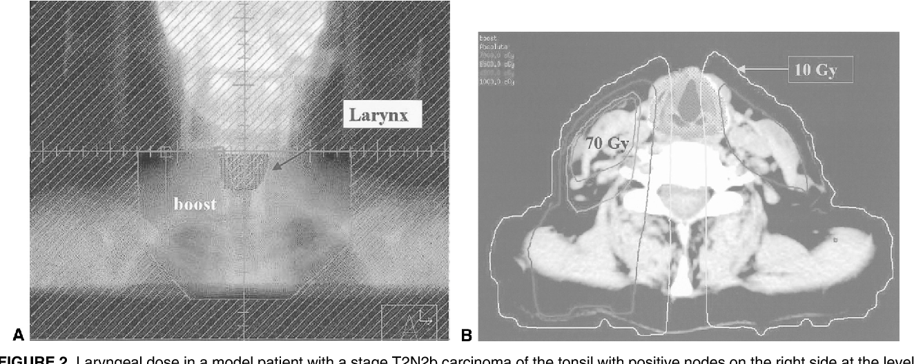 Figure 2 from Unnecessary laryngeal irradiation in the IMRT