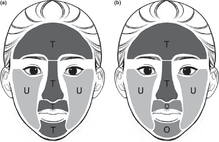 Figure 1 From Novel Facial Cosmetic Area O Zone Shows Unique