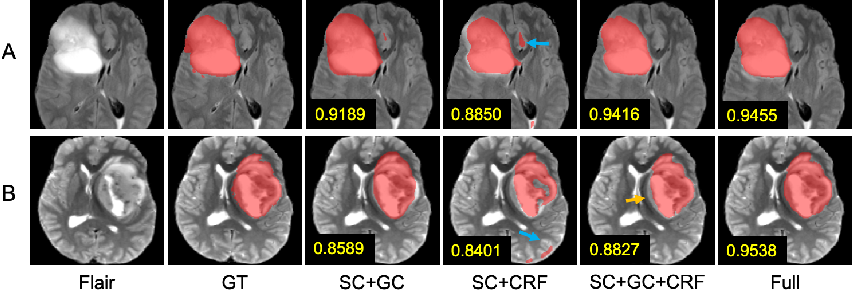 Figure 3 for Scribble-based Hierarchical Weakly Supervised Learning for Brain Tumor Segmentation