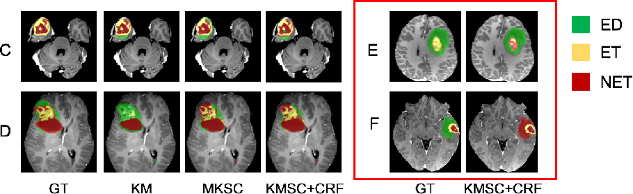 Figure 4 for Scribble-based Hierarchical Weakly Supervised Learning for Brain Tumor Segmentation