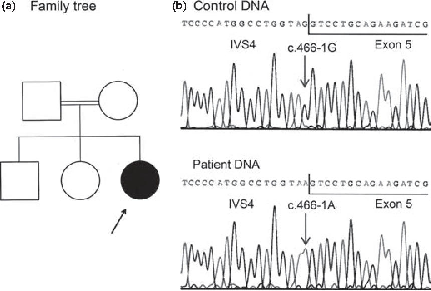Fig. 1 Genetics of identified STAR mutation. (a) Family tree. The arrow indicates our patient. (b) Electropherograms of the patient and a healthy control showing the homozygote mutation c.4661G>A in intron 4.
