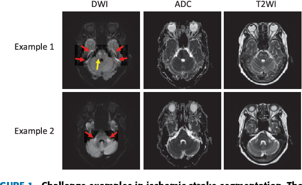 Figure 1 for Towards Clinical Diagnosis: Automated Stroke Lesion Segmentation on Multimodal MR Image Using Convolutional Neural Network