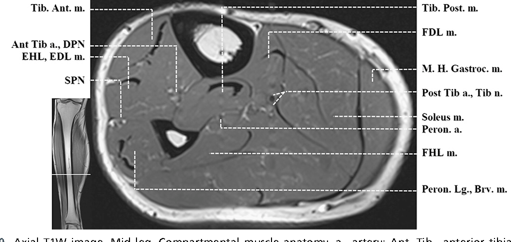 Figure 4 From Normal Mr Imaging Anatomy Of The Thigh And Leg