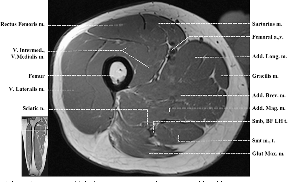 Figure 3 from Normal MR imaging anatomy of the thigh and leg ...