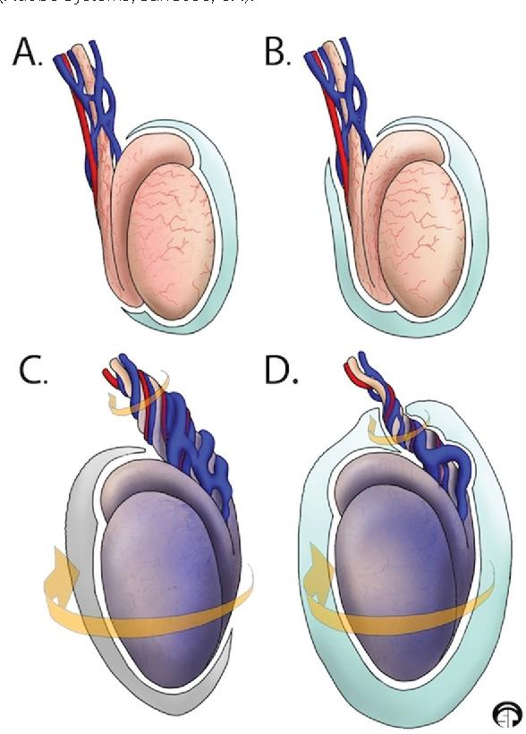 Figure 1 From Scrotal Swelling In The Neonate Semantic Scholar