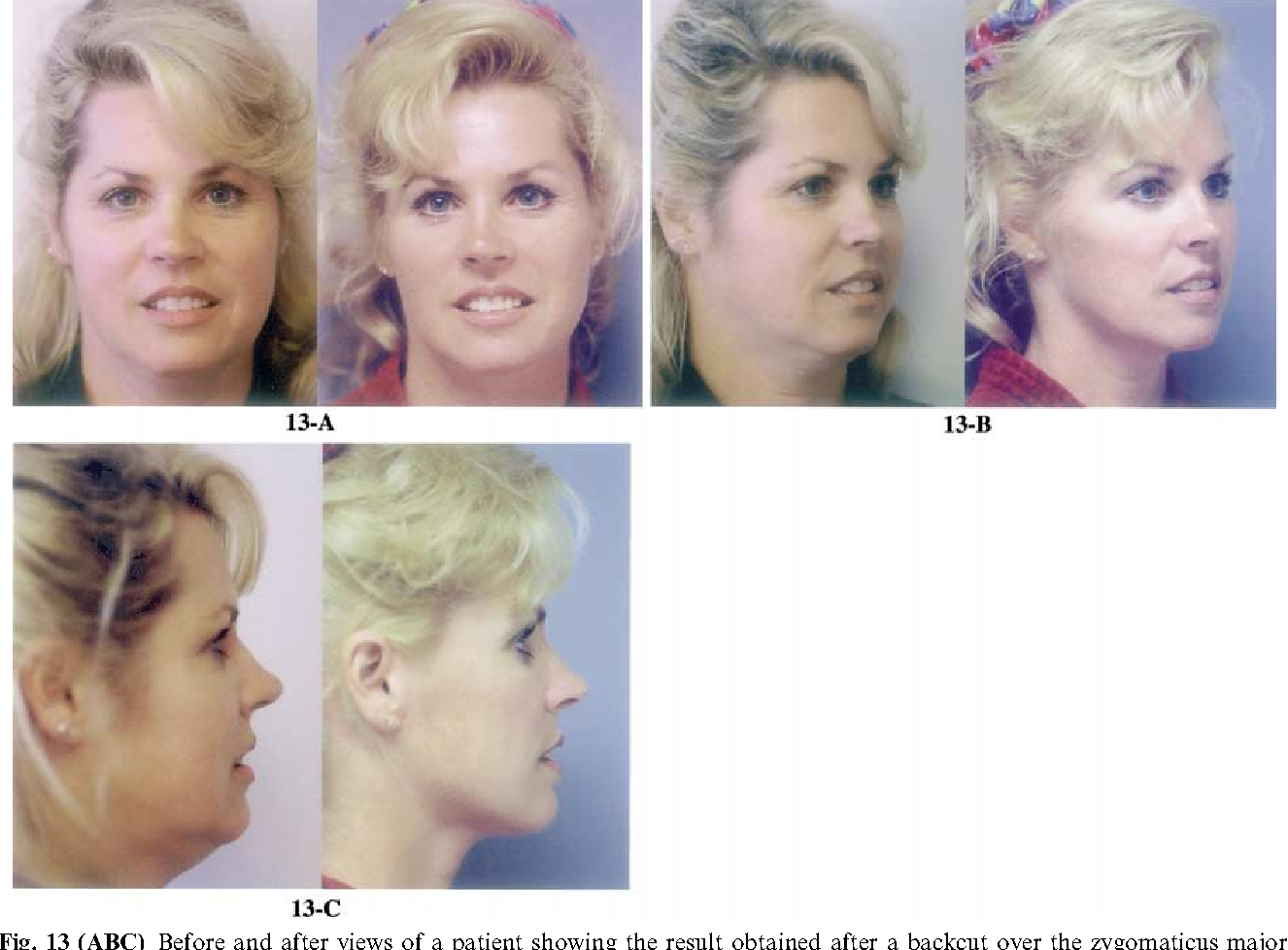 Facelift Measurement Of Superficial Muscular Aponeurotic System