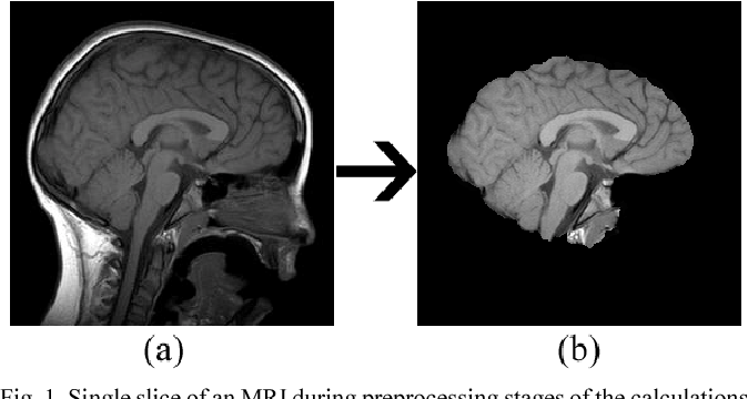 Figure 1 for Web Based Brain Volume Calculation for Magnetic Resonance Images