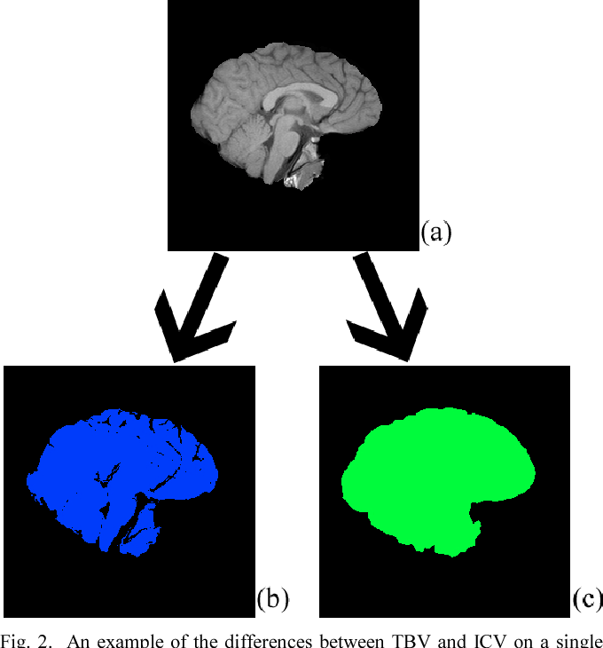 Figure 2 for Web Based Brain Volume Calculation for Magnetic Resonance Images
