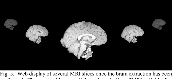 Figure 4 for Web Based Brain Volume Calculation for Magnetic Resonance Images