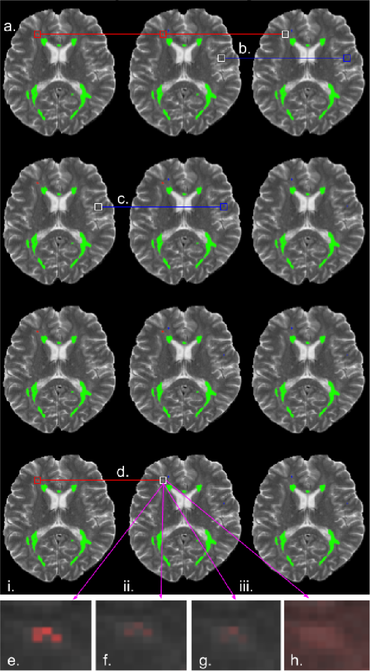 Figure 3 for Exploring Uncertainty Measures in Deep Networks for Multiple Sclerosis Lesion Detection and Segmentation
