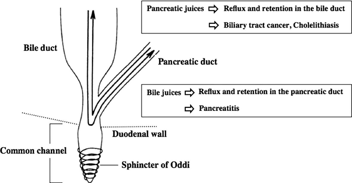 Biliary Carcinogenesis In Pancreaticobiliary Maljunction Semantic
