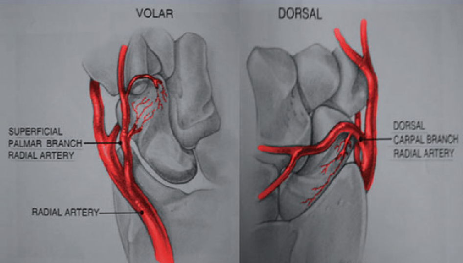Figure 6 from Review of imaging of scaphoid fractures. - Semantic ...