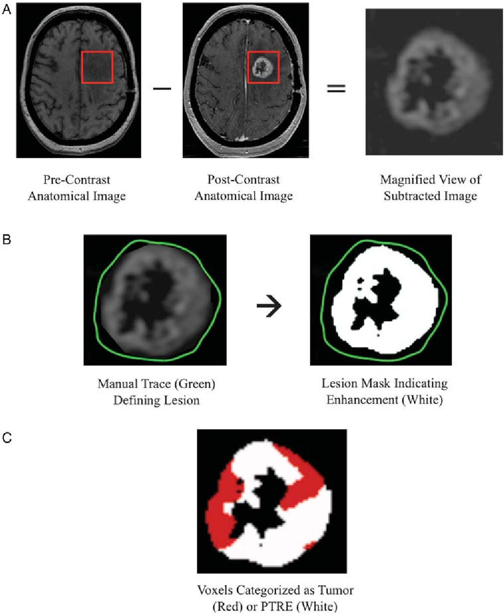 Reevaluating the imaging definition of tumor progression: perfusion ...